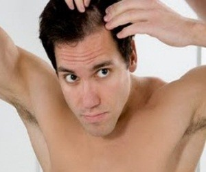 hair loss treatment McKinney
